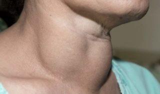 Симптомы гипотериоза во время менопаузы