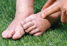 Отеки ног при климаксе у женщин