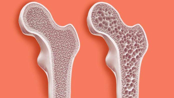 Препараты для лечения остеопороза при климаксе