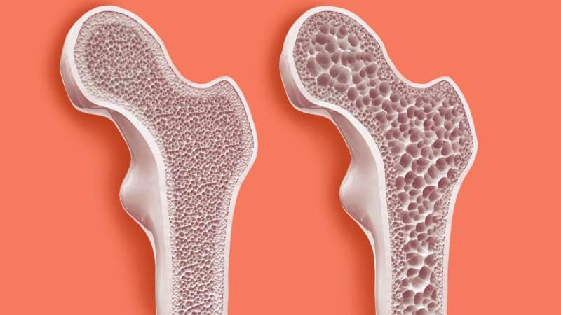 Профилактика остеопороза при климаксе, как избежать