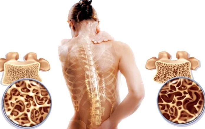Постменопаузальный остеопороз – что это, симптомы, лечение